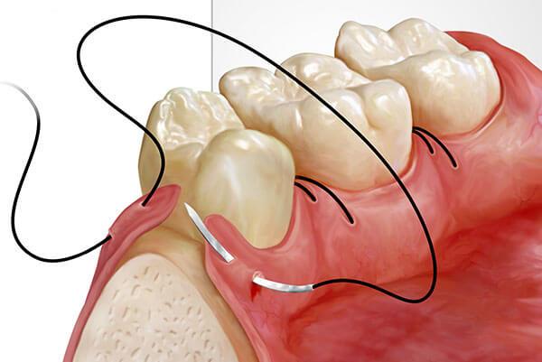 gum surgery - Gum Surgery 1 - Gum Surgery