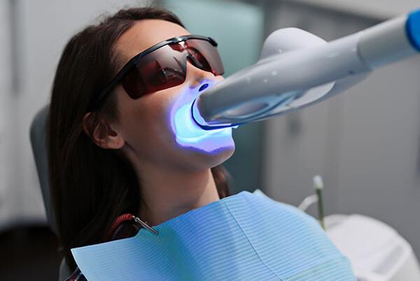 teeth whitening - Light activated teeth whitening1 1 - Teeth Whitening