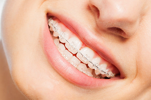 orthodontics & braces - Orthodontics1 1 - Orthodontics & Braces