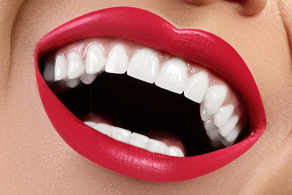 our services - Teeth Whitening1 1 - Our Services